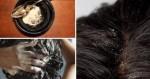 Sau 1 tuần, gàu trắng đầu cũng biến mất không dấu vết nhờ gội đầu với những nguyên liệu rẻ tiền này