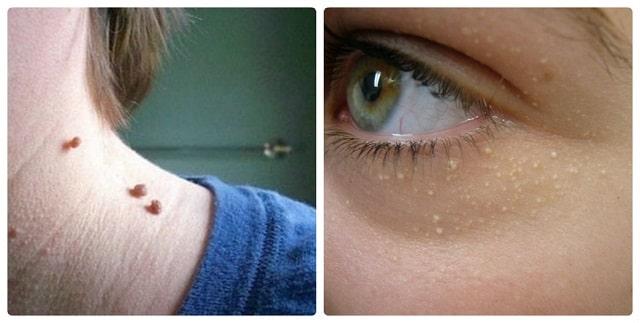 Đây là cách loại bỏ mụn thịt quanh mắt chỉ trong 2 tuần cực hiệu quả luôn nè