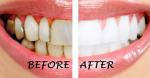 Răng ố vàng đến mấy cũng trở nên 'trắng sứ' nhờ ngậm thứ này mỗi sáng