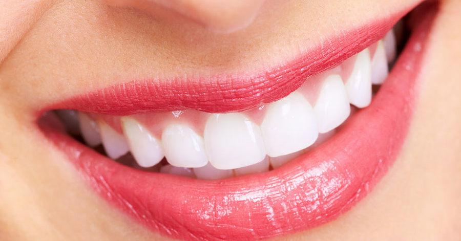 3 cách làm trắng sáng răng an toàn, hiệu quả ngay tức thì