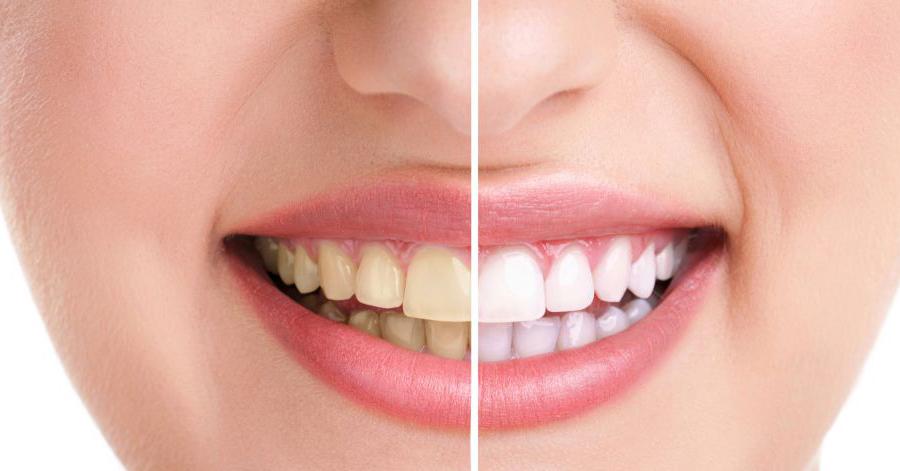 """""""Không thể tin nổi"""" chỉ với 1 lọ oxy già có giá vài nghìn, cao răng cũng bật ra từng mảng, răng trắng bóc như bọc sứ"""