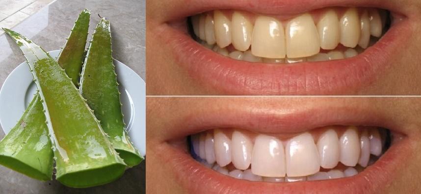 Cắt 1 miếng nha đam rồi chà trong 2 phút, răng trắng bóc như bọc sứ, hết sạch cao răng dù cả năm không đi lấy