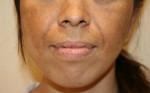 Giải quyết triệt để vấn đề nám da ở phụ nữ sau độ tuổi 30