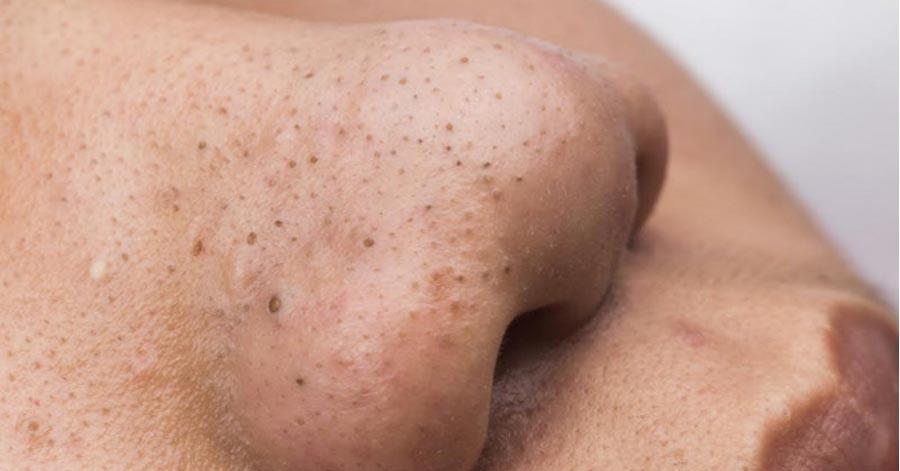 Thử ngay các cách trị mụn đầu đen bằng mật ong hiệu quả được rất nhiều người áp dụng