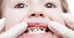 Răng đau buốt, ê nhức đến đâu cũng trị khỏi tức thì nhờ ngậm 1 lát gừng trong 5 phút