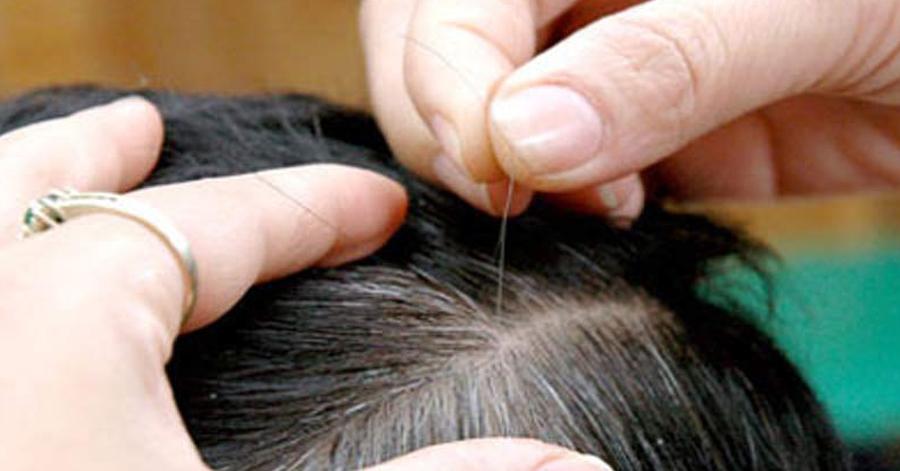 Ai mắc chứng tóc bạc sớm thì đọc bài này, bạn sẽ mừng rơi nước mắt vì tóc đen và suôn mượt trở lại đấy