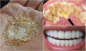 Trộn 1 thìa đường + 1 thìa muối, ngậm 5 phút cao răng cứng như đá bong ra từng mảng, hôi miệng thâm niên cũng trị dứt điểm