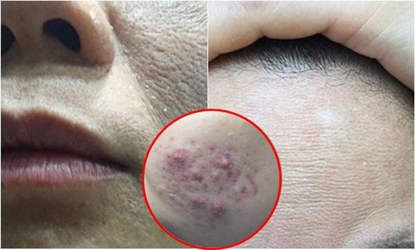 Sốc với 6 thói quen 100% chị em đều làm mỗi ngày khiến da mọc đầy mụn lại sạm màu, cần bỏ ngay kẻo hối không kịp