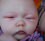 10 triệu chứng bệnh ở con nhỏ bố mẹ nên thuộc nằm lòng