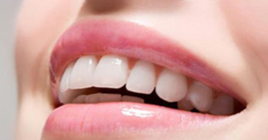 Chuẩn bị 1 thìa sữa chua rồi chà lên răng thế này, chà đến đâu cao răng bong ra đến đó, răng trắng như bọc sứ luôn