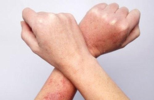 Bôi thứ này lên da, cả viêm nang lông kinh niên cũng giảm rõ rệt, da mịn như em bé sau 1 tuần