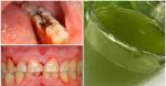 Dùng loại nước này súc miệng, trị khỏi đau nhức, ê buốt do sâu răng