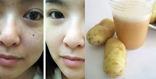 Người bị nám lâu năm mà bỏ qua bí quyết dùng chanh và khoai tây theo cách này thì phí cả đời