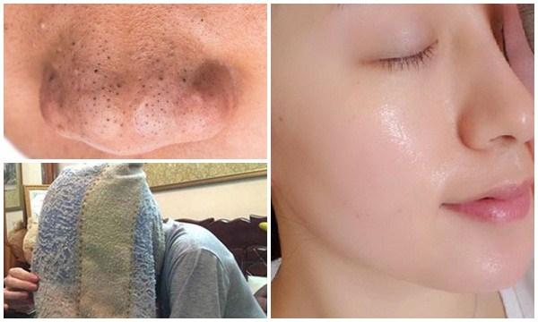 Học 4 bước dưỡng da này từ gái Hàn, cả đời không lo mụn đầu đen xuất hiện, da dẻ lúc nào cũng căng bóc như gái 20
