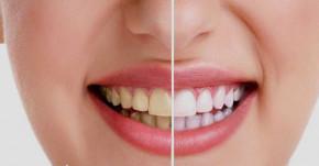 Ngậm ngụm nước này 2 phút trước khi ngủ, cao răng, vàng răng, hôi miệng kinh niên chẳng còn nữa