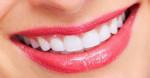 Răng trắng sáng gấp 3 lần, mảng bám cứng như vôi cũng bật ra bằng sạch