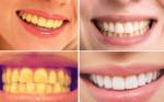 Công thức của mẹ: Chỉ cần 2 phút làm trắng răng như sứ ấn tượng rất dễ dàng ngay tại nhà