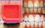 Mẹo nhỏ biến răng ố vàng thành trắng sáng như bọc sứ để tự tin hơn với nụ cười của bạn