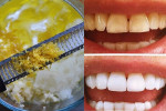 Răng ố vàng cỡ nào, chỉ cần trộn thứ này với muối rồi chà là trắng bóng không tì vết