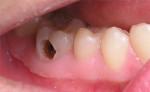 Ai bị đau nhức do sâu răng, viêm nướu, nhiệt miệng thì đọc ngay bài viết này, đảm bảo bạn sẽ mừng rơi nước mắt