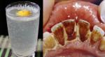 Tư làm nước súc miệng thần kì giúp răng trắng sáng sau 2 phút