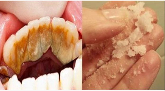 Răng trắng như sứ, cao răng rụng từng mảng, hôi miệng hết sạch chỉ sau 3 phút dùng thứ này