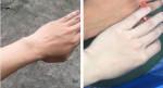 Chỉ mất 4-6 lần tắm bột cám gạo, da nàng nữ sinh trường Y đã trắng muốt bất ngờ