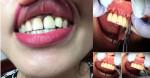 Hiểm họa khôn lường từ việc bọc răng sứ GIÁ RẺ nhiều chị em HỎNG luôn hàm răng