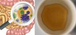 Thải sạch độc đường ruột, thanh lọc cơ thể: Hãy uống 1 thìa mật ong vào đúng thời điểm