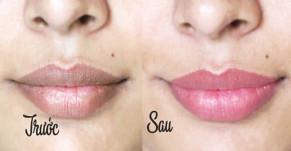 6 cách trị thâm môi tại nhà nhanh nhất, làm hồng môi không cần son với nguyên liệu chỉ vài nghìn đồng