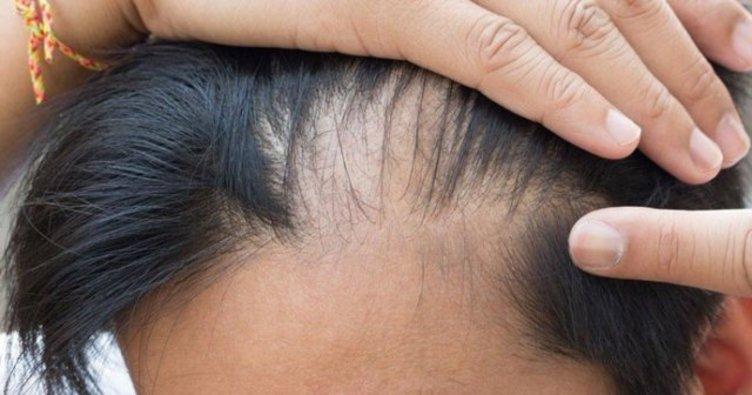 Bỏ ngay 5 thói quen tai hại này nếu không bạn sẽ bị rụng tóc và hói đầu