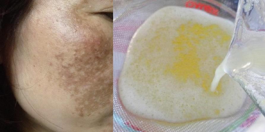 Triệu triệu phụ nữ đã dùng 2 thứ này mỗi ngày để trị 'vĩnh viễn' nám và tàn nhang trên da