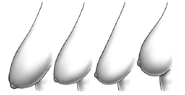 Tuần ăn 2 lần thì ngực xệ như 2 quả mướp cũng trở nên căng tròn khiến chồng phát mê