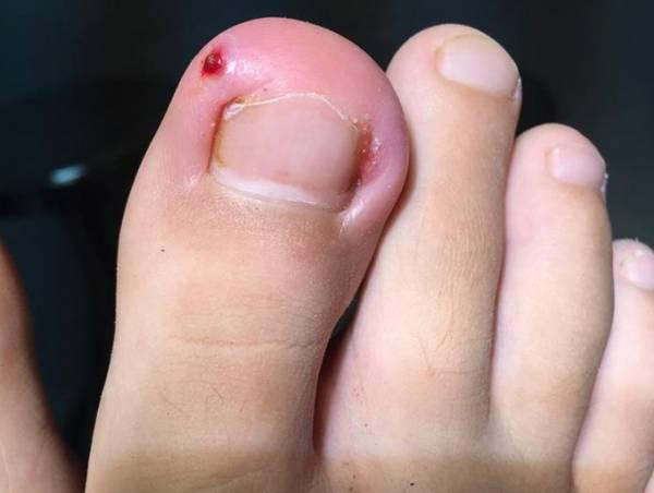 Cách xử trí khi móng chân mọc đâm chọc vào da