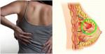 4 tác hại nghiêm trọng khi bạn mặc áo ngực 24/24