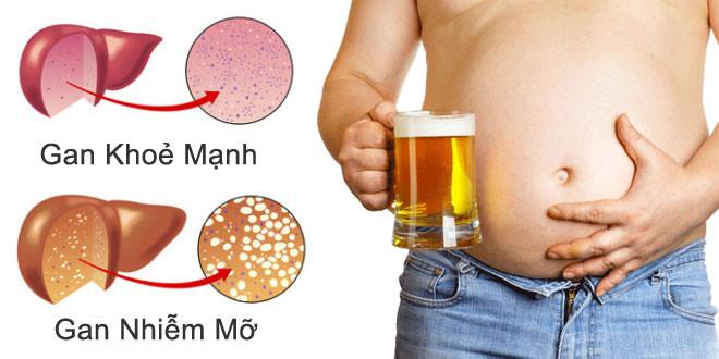 Thoát khỏi gan nhiễm mỡ nhờ uống loại NƯỚC ÉP HỖN HỢP này trong vòng 3 tháng