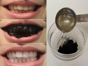 Mẹo tẩy trắng răng bằng than hoạt tính hiệu quả, an toàn để đón Tết