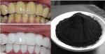 Răng trắng bóc, mảng bám bong tróc, mờ xỉn vàng chỉ nhờ nhúm than củi đen rẻ tiền