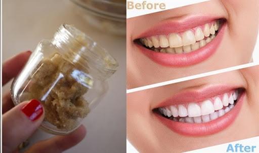 Ngậm 1 thìa hỗn hợp này răng sẽ trắng sáng như bọc sứ trị dứt điểm hôi miệng mà chẳng tốn 1 xu đi nha sĩ