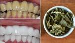 Răng trắng bóc trong vòng 1 tháng chỉ nhờ nắm lá dễ kiếm này