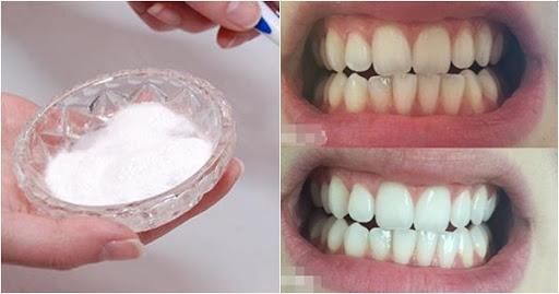 Rần rần cách làm trắng răng đón Tết ngay lập tức chỉ với 1 muỗng này, cao răng, mảng bám bong tróc, miệng thơm tho sạch sẽ