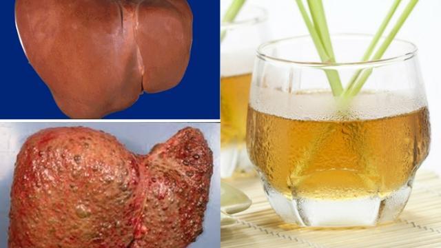 Thải độc gan, thận, bàng quang và cả tuyến tụy chỉ với 1 ly nước sả vô cùng đơn giản