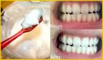 Bí quyết cực hay giúp bạn loại bỏ cao răng ngay tại nhà không hề tốn kém