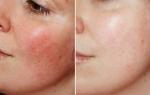 4 Loại mặt nạ dành cho da mặt mỏng giúp khôi phục và dưỡng ẩm làn da hiệu quả 100%