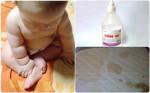 Đệm Ố VÀNG vì con nhỏ hay tè dầm cũng sạch sẽ thơm tho trong 20 phút nhờ 1 LỌ CỒN