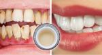 Làm sạch cao răng từ 4 loại gia vị luôn có trong mỗi gia đình