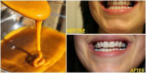 4 Công thức ĐƠN GIẢN với những nguyên liệu RẺ TIỀN giúp bạn luôn trắng răng thơm miệng