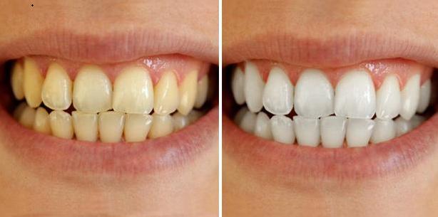 Ngậm hỗn hợp này 5 phút, cao răng tự bong ra thành từng mảng, chấm dứt hôi miệng tức thì, không phải đi nha sĩ