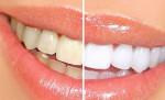 Mẹo xử lý răng ố vàng nhanh chóng và hiệu quả ngay tại nhà