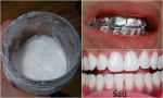 Lấy giấy bạc quấn quanh răng trong 5 phút, răng trắng sạch gấp 5 lần đi nha sĩ